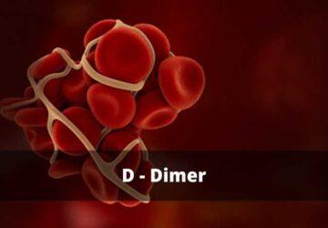 d-dimer
